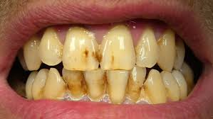 cancer causes yellow teeth is a false causation